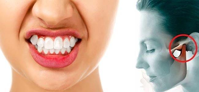 Bruxism destroys teeth